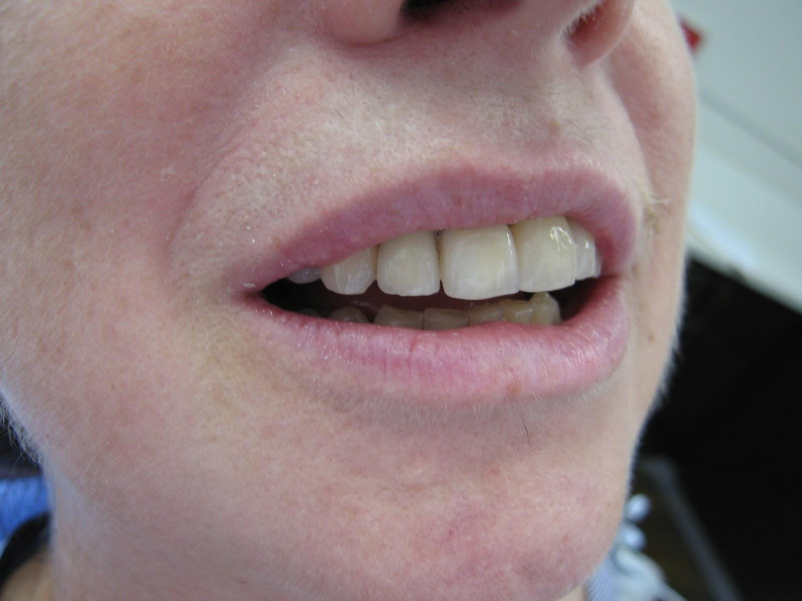 Implant Crown Dental Implants Prosthodontist Dental