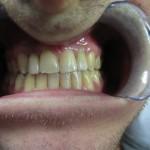 Dental Implant Crowns