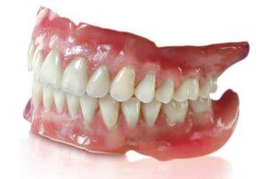 Full Set of Dentures by Dr Z Patel Claremont